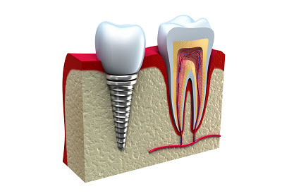dental implants in marina del rey, ca
