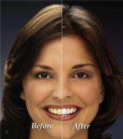before and after picture of woman smiling