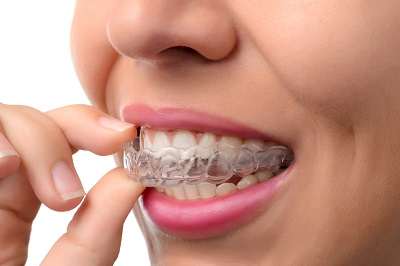 woman putting on invisalign clear braces