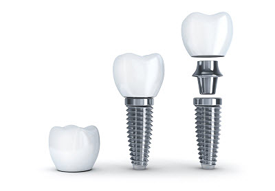 Tooth implant disassembled in 3D