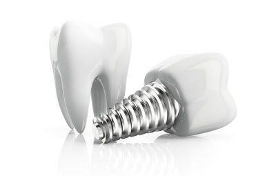 3d render of tooth with implant isolated on white