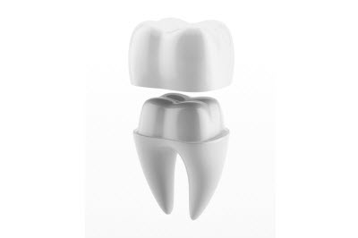 Dental crown and tooth - 3d render