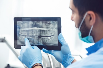 dental x-ray on tablet
