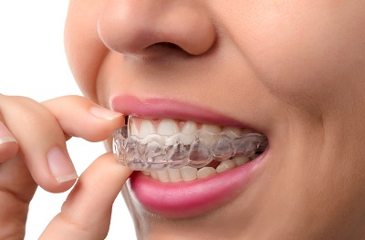 Image of close up of woman putting on clear braces