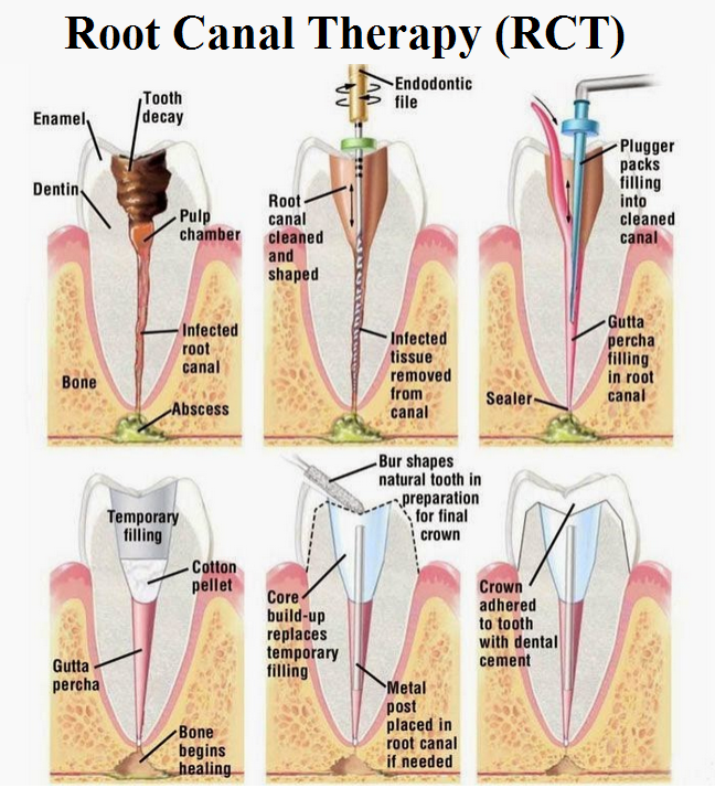 Root Canal Therapy | East Windsor, NJ | Sweet Tooth Dental