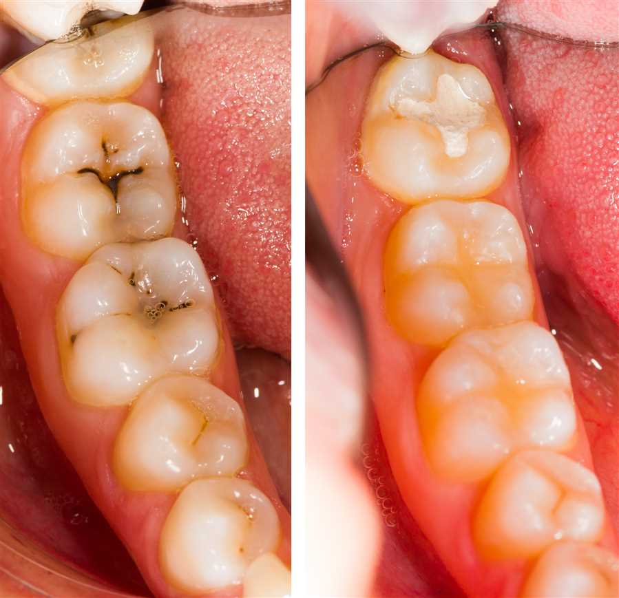 Everything You Need To Know About White Fillings
