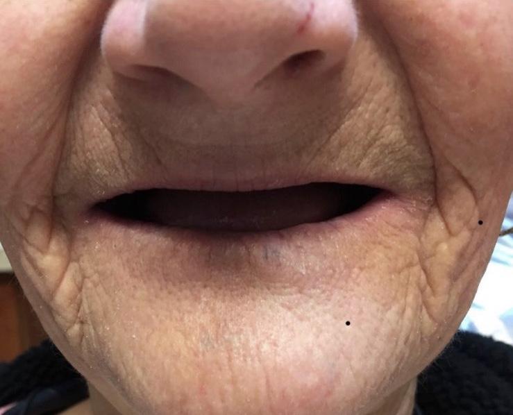 Lawrenceville Dentures | Peach Smiles