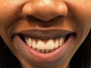 $1195 Veneer Special | New York, NY | MICHAEL HORVATH, DDS