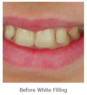 White fillings langley bc saidi dental group we have given many people their smiles back and can give you yours back too you can free yourself from metal fillings and achieve long term oral health solutioingenieria Gallery