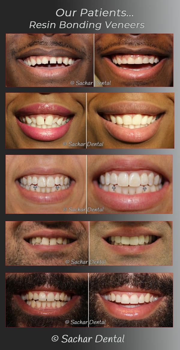 cosmetic dentistry longview tx