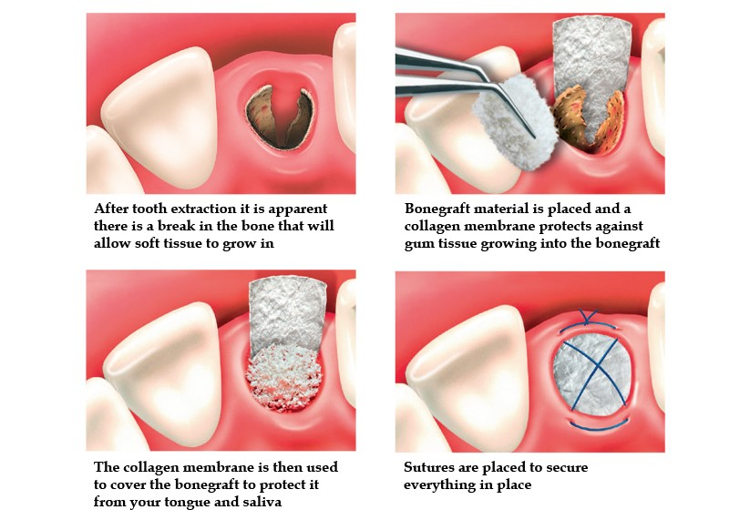 Bone Grafting Syracuse New York Ellinwood Dental